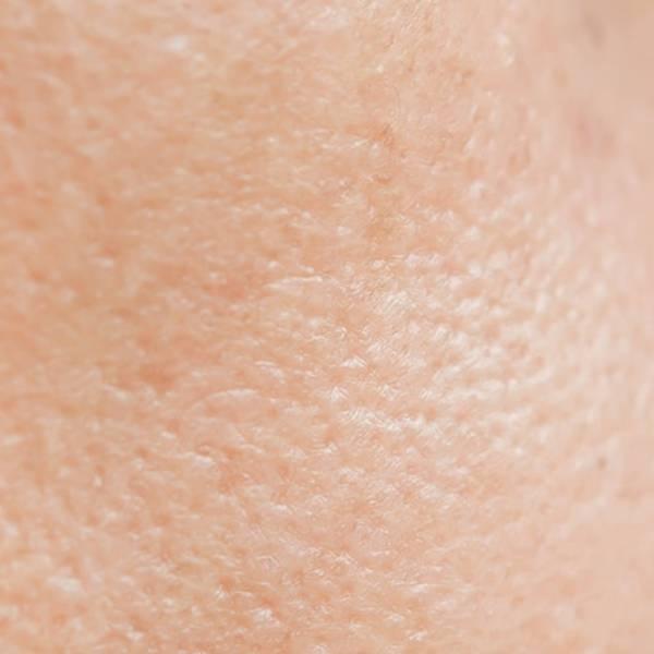 Članak o akne - glavna slika